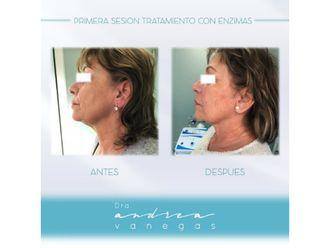 Rejuvenecimiento facial-627896