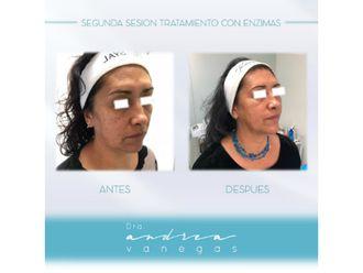 Rejuvenecimiento facial-627897