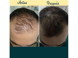 Alopecia - 648725
