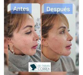 Reconstruccion de mandibula con ácido hialurónico