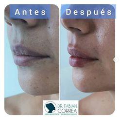Aumento de labios - Dr. Fabian Correa