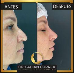 Rinomodelación - Dr. Fabian Correa