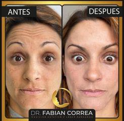 Toxina Botulínica - Dr. Fabian Correa