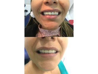 Ortodoncia-689958