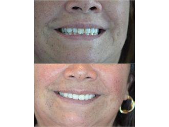 Implantes dentales-689960