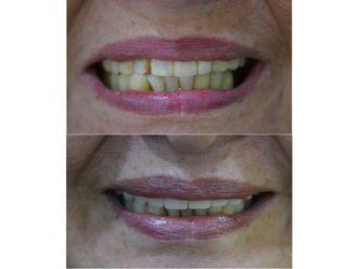 Implantes dentales-689961