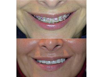 Ortodoncia-689962