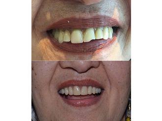 Implantes dentales-689963