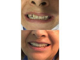Implantes dentales-689965