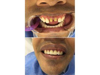 Implantes dentales-689966