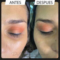 Eliminación de ojeras - Dr. Jeisson Gutiérrez Cañas