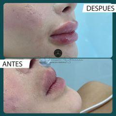 Aumento de labios - Dr. Jeisson Gutiérrez Cañas