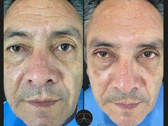 Rejuvenecimiento facial - 799850