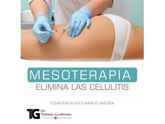 Mesoterapia-639802