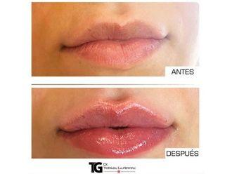 Aumento de labios-639892