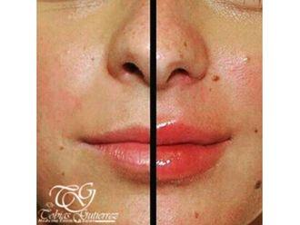 Aumento de labios-642749