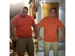 Cristian: 1 año, -44 kilos, manga gástrica - Dr. Diego Lozano