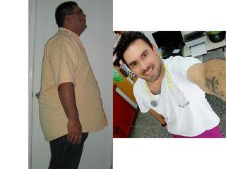 Manga gástrica, 11 años, -75 kilos - Dr. Diego Lozano