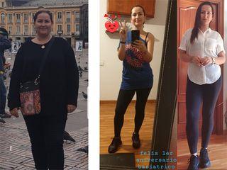 Manga gástrica, 1 año, -52 kilos - Dr. Diego Lozano
