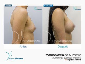 Mamoplastia de aumento - 645374