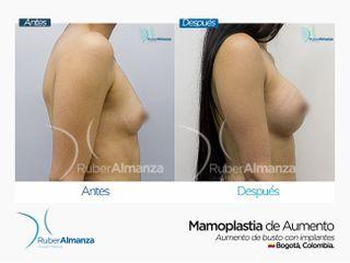 Antes y después Mamoplastia de aumento