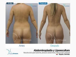 Abdominoplastia y Liposucción Antes y después
