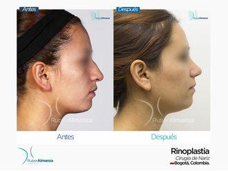 Rinoplastia-649076