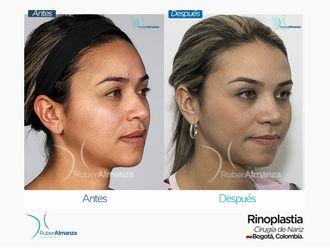 Rinoplastia-649078