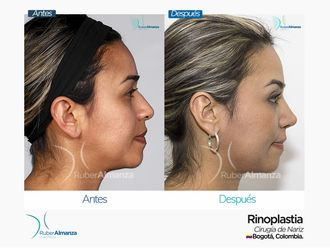 Rinoplastia-649079