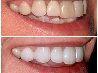 Blanqueamiento dental - 410477