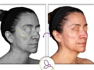 Rejuvenecimiento facial - 663265