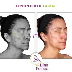 Lipoinjerto facial para rejuvenecer el rostro - Dra. Lina Franco