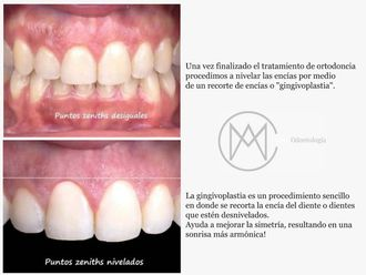 Blanqueamiento dental - 626512