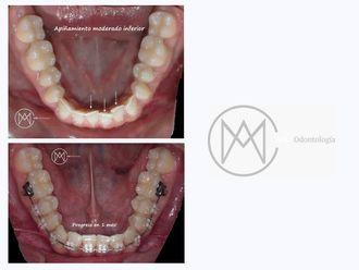 Ortodoncia - 626513