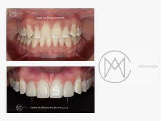 Blanqueamiento dental - 626514