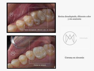 Ortodoncia - 626801