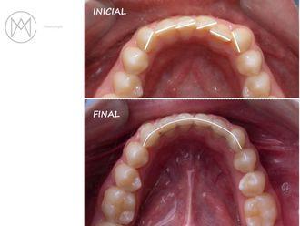 Ortodoncia - 630636