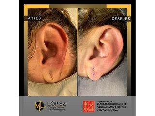 Cirugía reconstructiva - Dr. Miguel Lopez