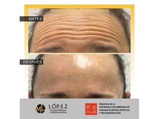 Bótox - Dr. Miguel Lopez