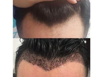 Implantes de cabello-648236