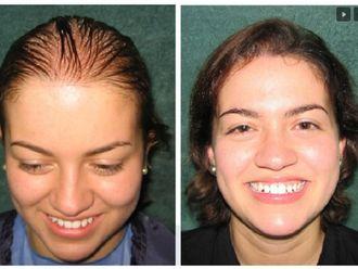 Alopecia - 581364