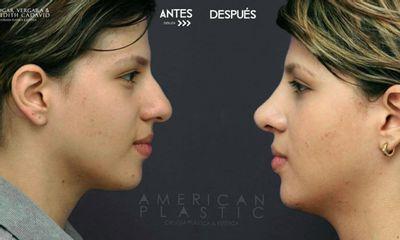Rinoplastia - American Plastic