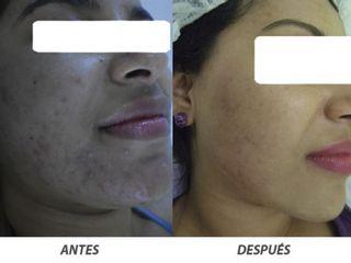 Antes y despues de tratamiento de acne