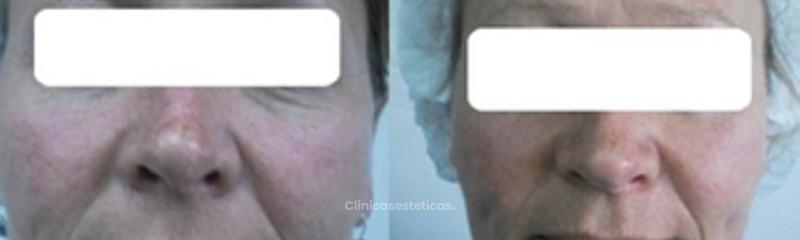Antes y despues de remosion de venas en la cara