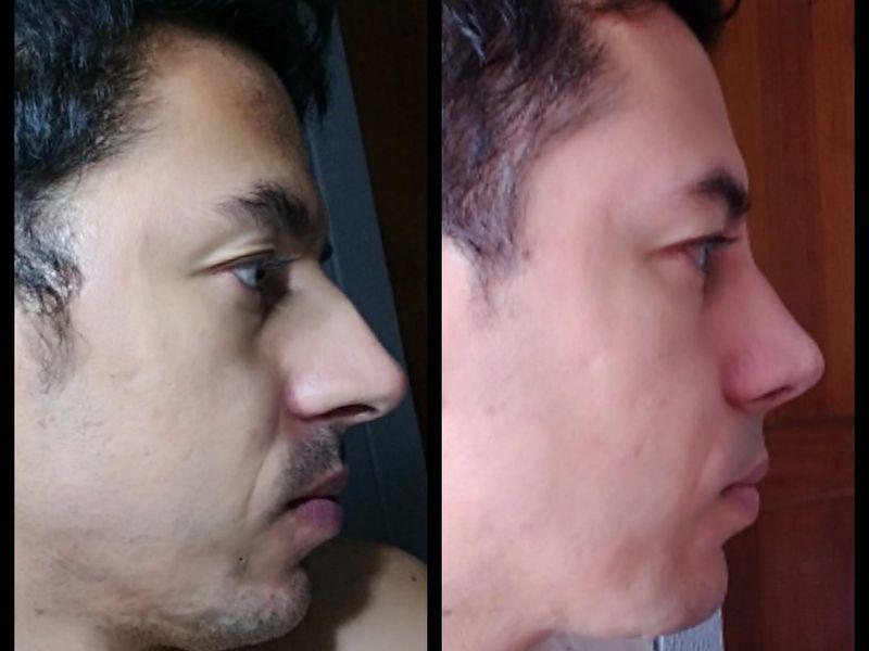Bienvenidas las fotos de perfil! Con mi nueva nariz ✨