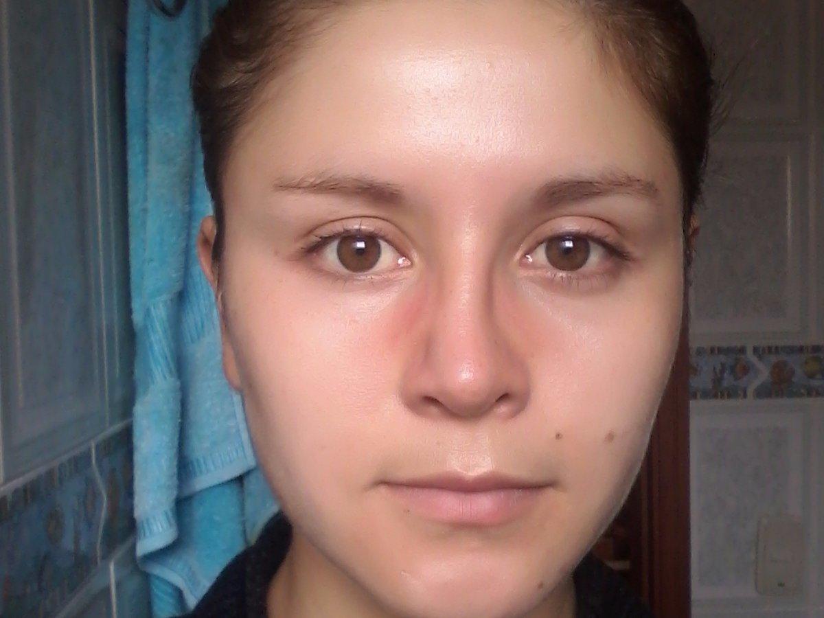 punta+dela+nariz+hinchada+despues+de+rinoplastia