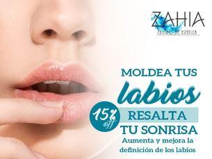 Biomodelación de labios