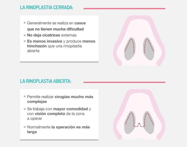 Técnicas de rinoplastia