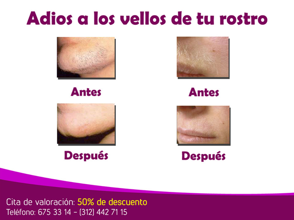 Paciente antes y después de depilación láser