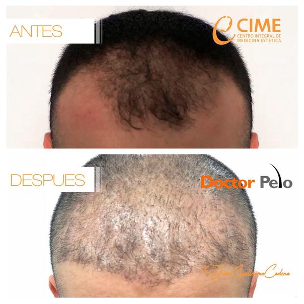 resultados tratamiento para el cabello